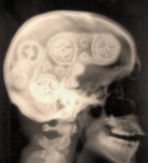 Шестерни в черепе